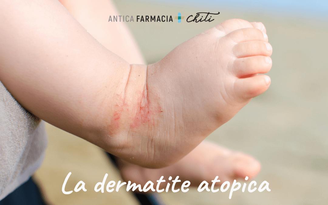 La dermatite atopica: cos'è e come curarla